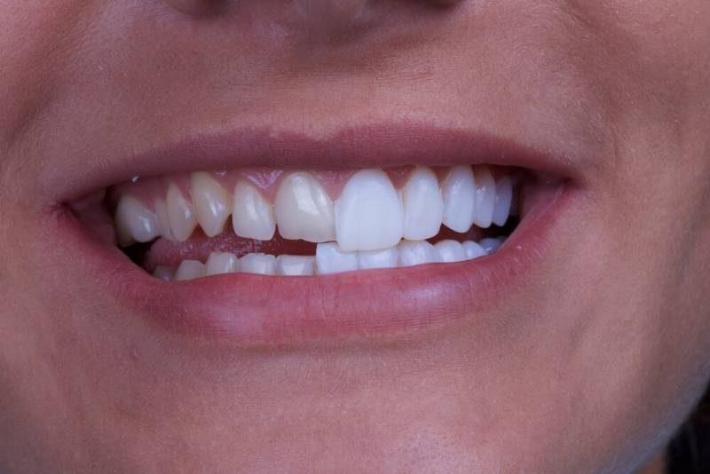 faccette-dentali-1